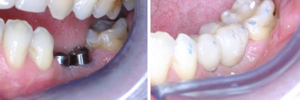 Dental Implant before and after treatment photo