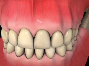 The dental crown is screwed or cemented onto the dental implant post