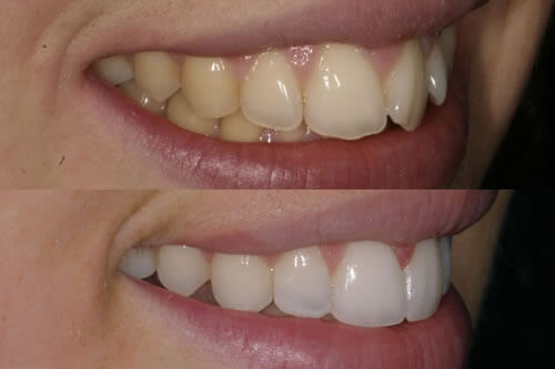 Orthodontics in Navan