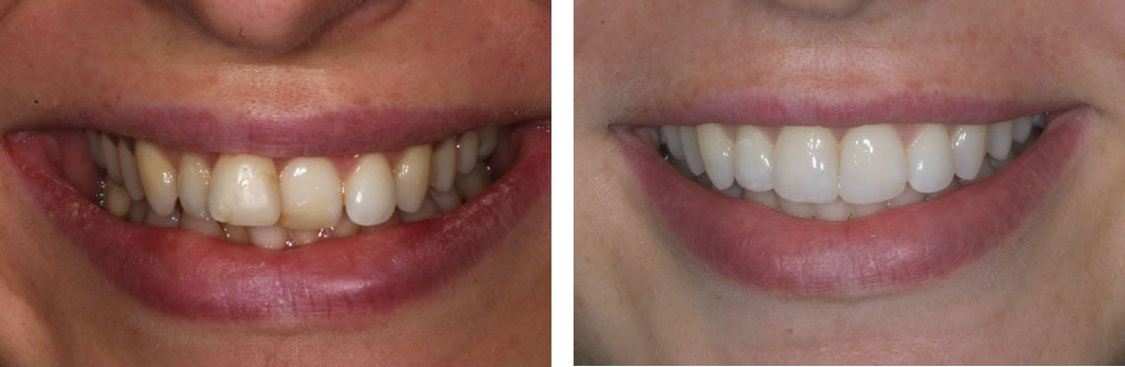 Inman Aligner Before & After photo