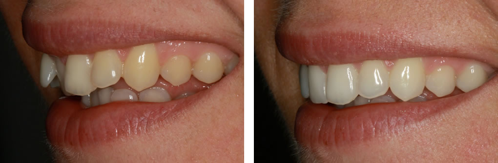 Inman Aligner Before and After Photo