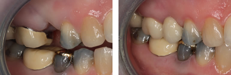 Dental Bridge before and after treatment available from Navan Dental