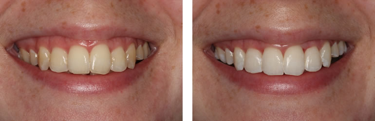 Before and after photo of Teeth Whitening treatment available from Navan Dental