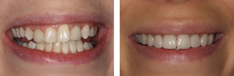 Before and after veneers treat at Navan Dental
