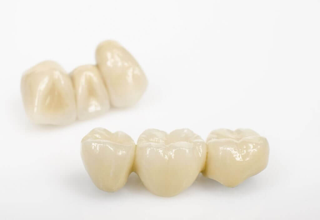 An example of a dental bridge available at Naval Dental