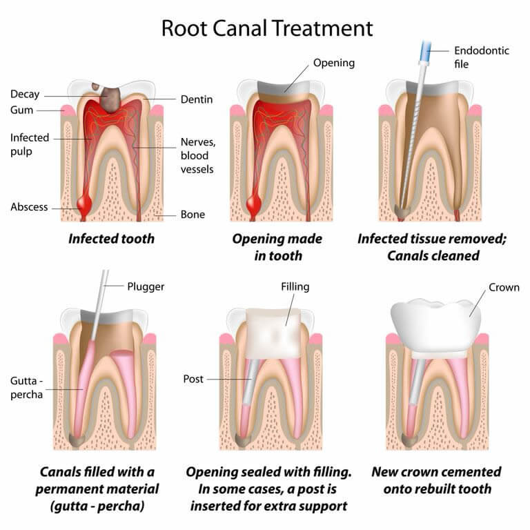 Root Canal Treatments available at Navan Dental