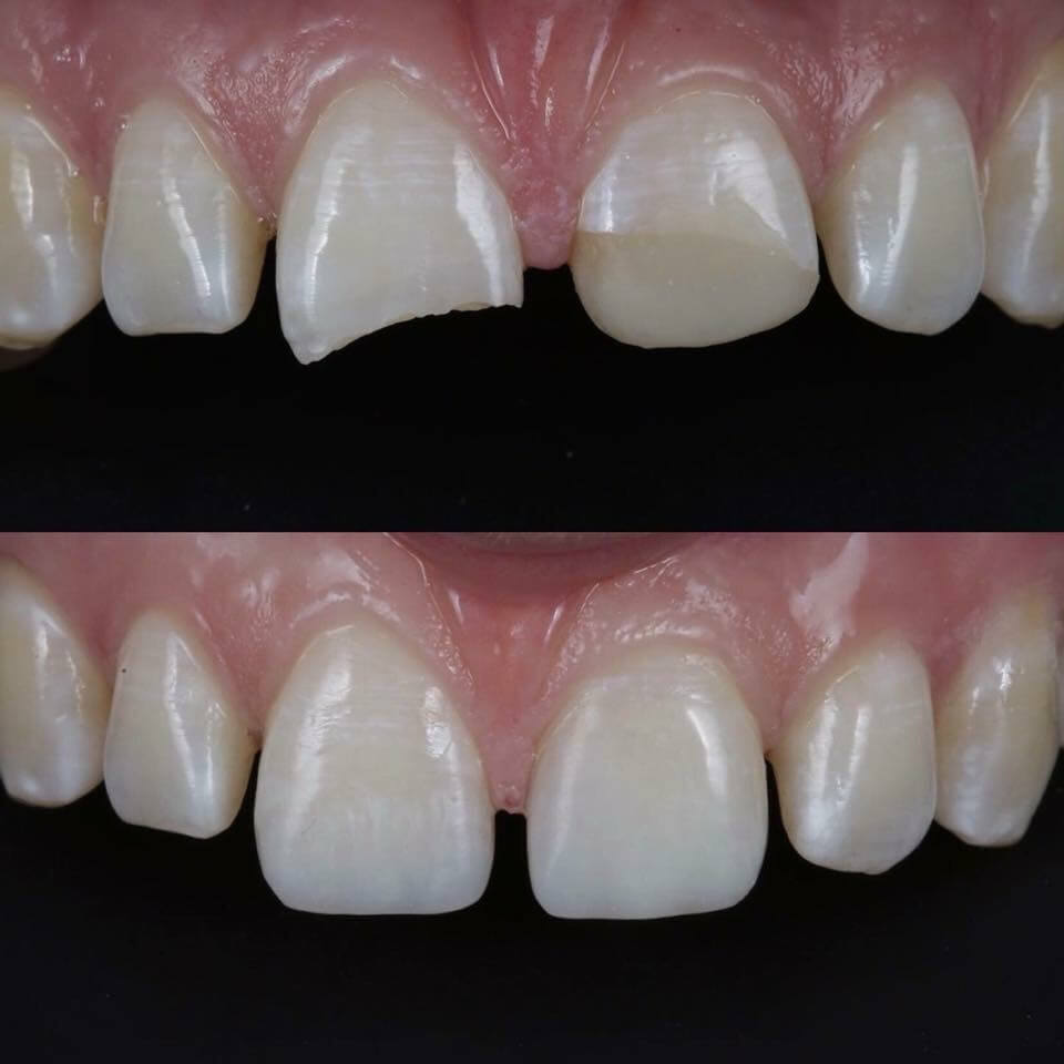 Tooth Contouring by dentists in Navan
